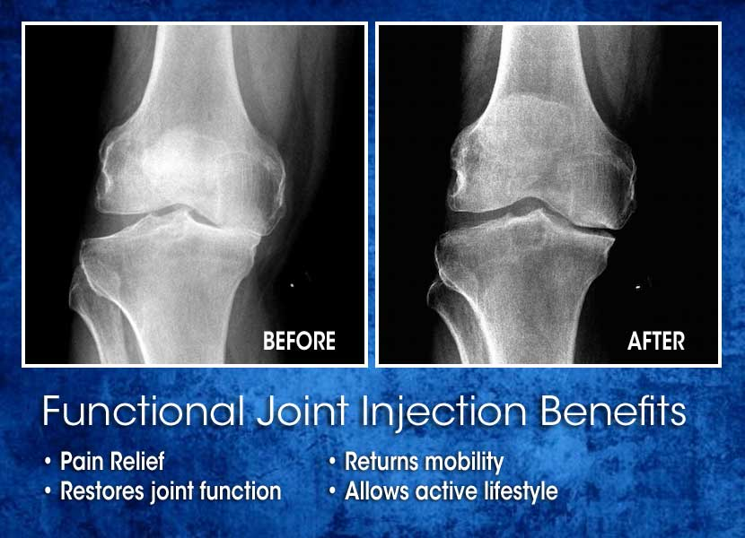 Joint Pain Injections Montgomery