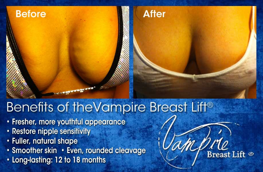 Vampire Breast Lift Benefits
